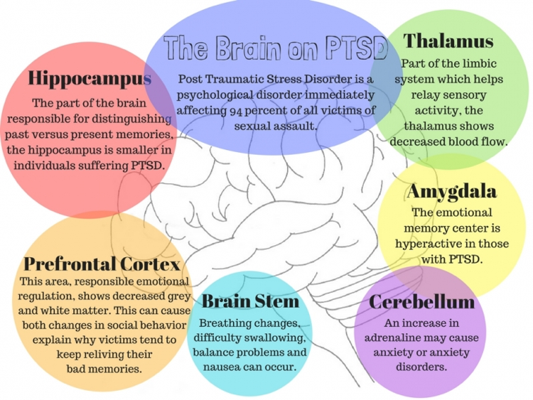 The brain's reactions in response to PTSD. Image Source. (Used with permission.)