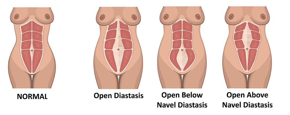Different variations of diastasis recti