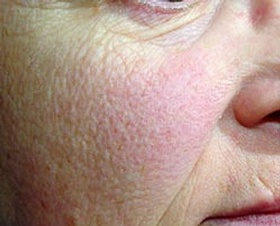 This image shows skin before Laser Genisis treatment.