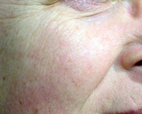 This image show dramatically improved skin after 6 Laser Genisis treatments. Pore size, redness and overall skin texture has been dramatically improved.