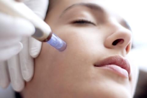 El neuroestimulador dérmico hará que la piel de tu rostro se vea rejuvenecida desde la primera sesión. Elimina marcas, cicatrices e imperfecciones de la piel.