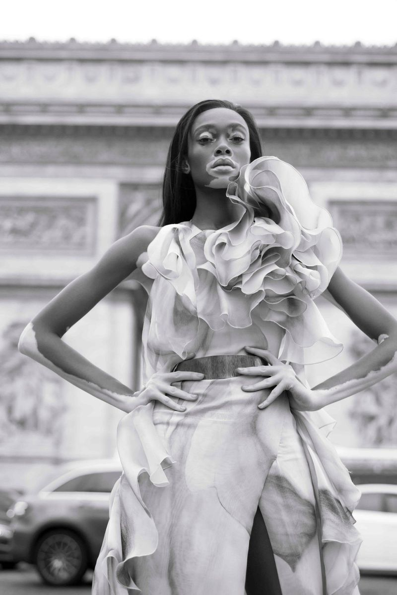 Winnie Harlow by Jacques Burga for Harper's Bazaar Mexico and Latin America Nov 2018 (1).jpg