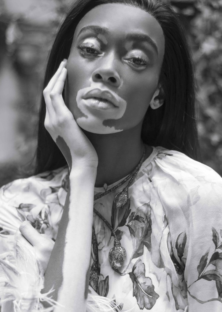 Winnie Harlow by Jacques Burga for Harper's Bazaar Mexico and Latin America Nov 2018 (2).jpeg
