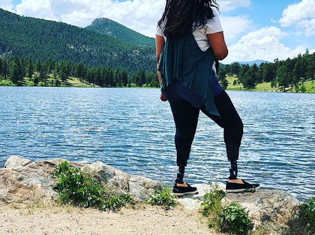 """I go wherever my legs take me."" Last week, it was Colorado! Enjoy every step with a #comfortablefit. All thanks to #BlueSkyProsthetics • • • • #BlueSkysTheLimit #lovelife #explorer #ottobocklove #LilyLake #Colorado #TexanInColorado #neverstop #highaltitude #outofbreath #ColoradoSkies #prostheticlife #justkeepwalking #adaptive #nolimits #beautifullife"