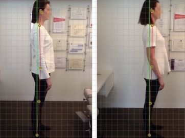 Not all of our client's have blurred faces but many of them do have FHP. In this photo, you can see a client's progress from where her head started on the left, to where she is headed now.   She still has some way to go, however we can tell that she is headed in the right direction.   *Individual results may vary.
