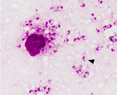 Leishmania amastigotes living in a mammal.  The big purple blob is a white blood cell.  These amastigotes live inside the white blood cells as they cause disease.