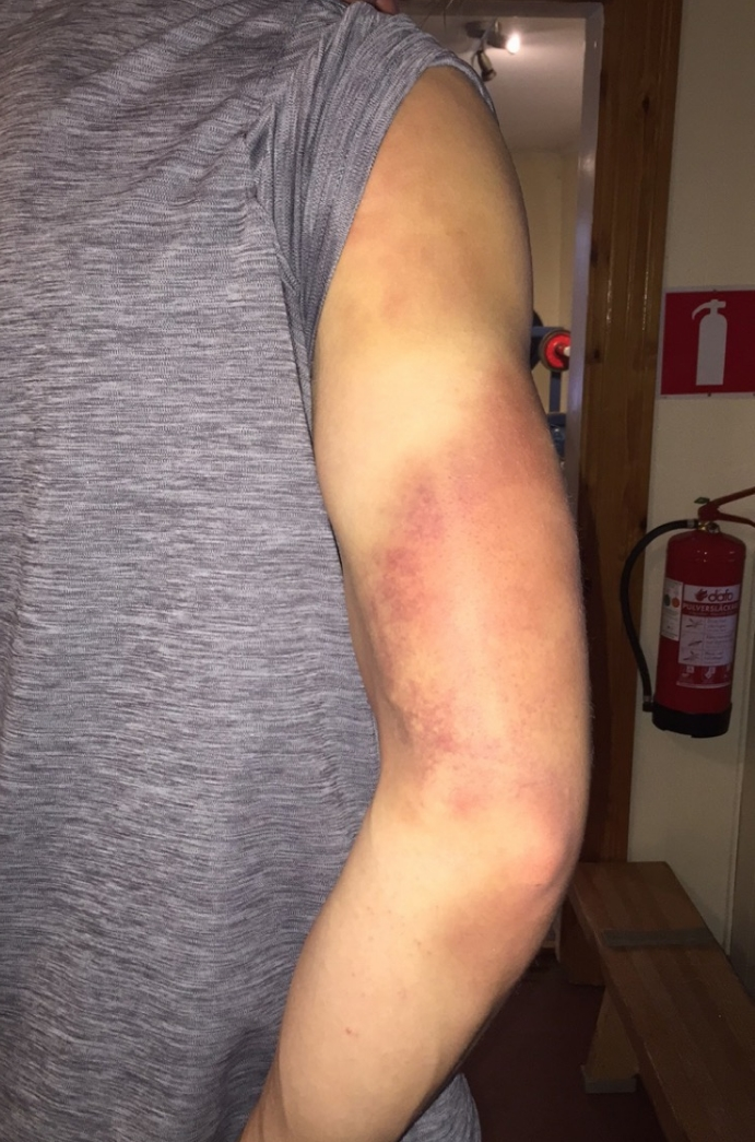 Armen har fått ta lite stryk efter ett antal SG och GS dagar.