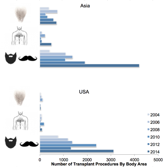 This figure reports the number of pubic, chest and facial hair procedures performed in the US and Asia.