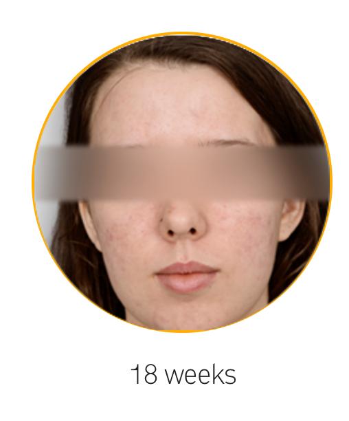 16 Weeks Kleresca