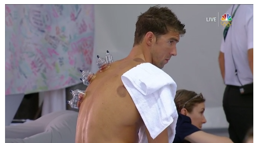 Michael Phelps receives cupping therapy between races. Screenshot taken from http://www.nbcolympics.com/video/michael-phelps-undergoes-cupping-warm-room
