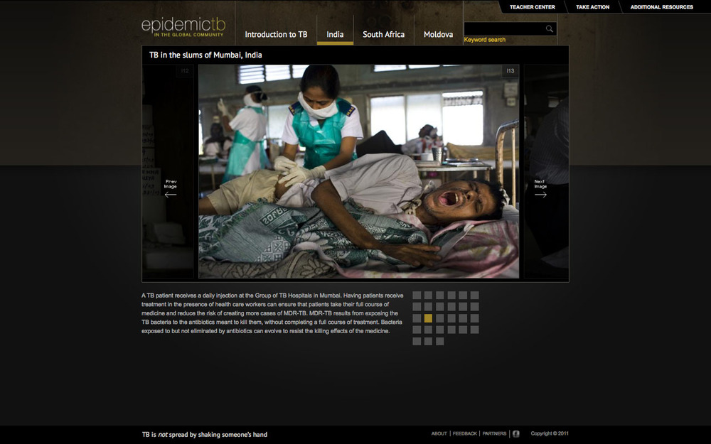 Tuberculosis-in-Indea-gallery-screenshot.jpg