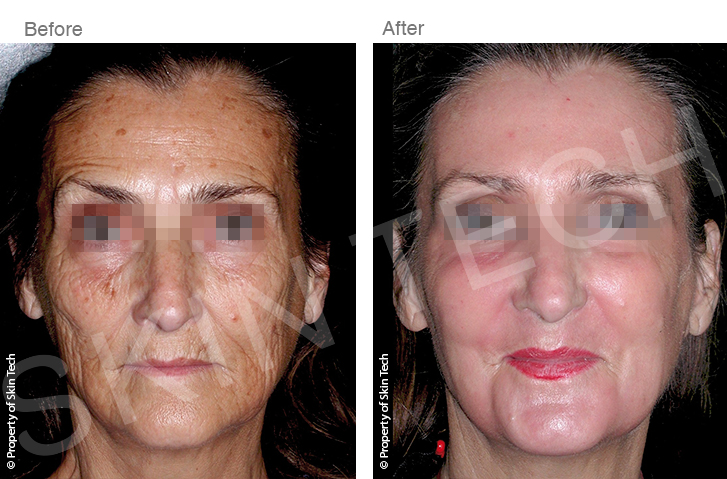 banner_global_skin_rejuvenation2.jpg