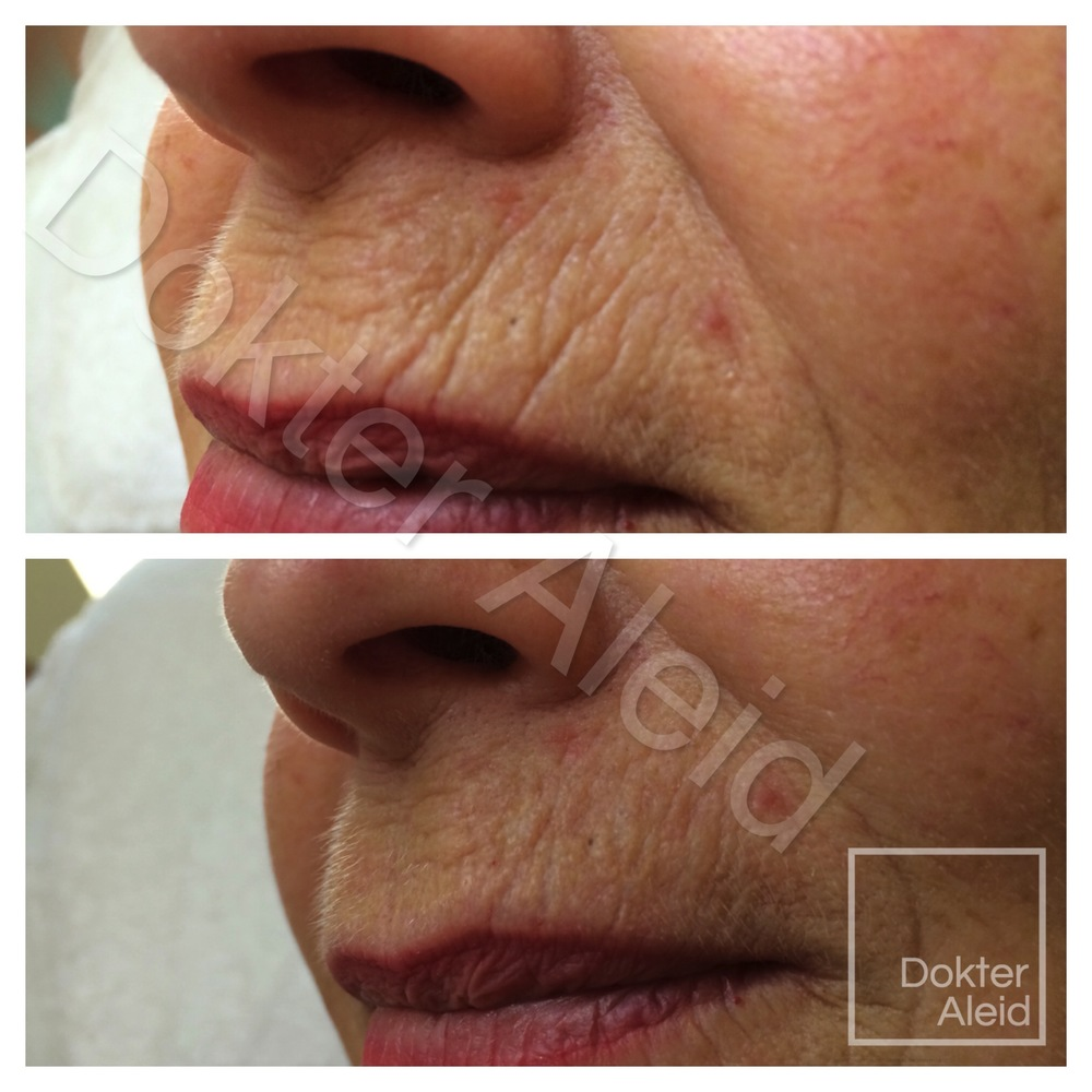 Filler (hyaluronic acid) 'smokers lines' (patient decided to not remove all lines).