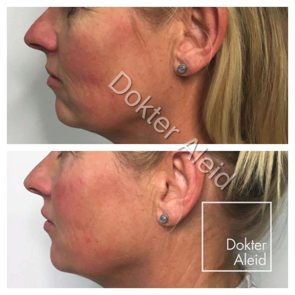 Filler (Juvederm) cheeks, tear troughs, chin, jaw line, lips
