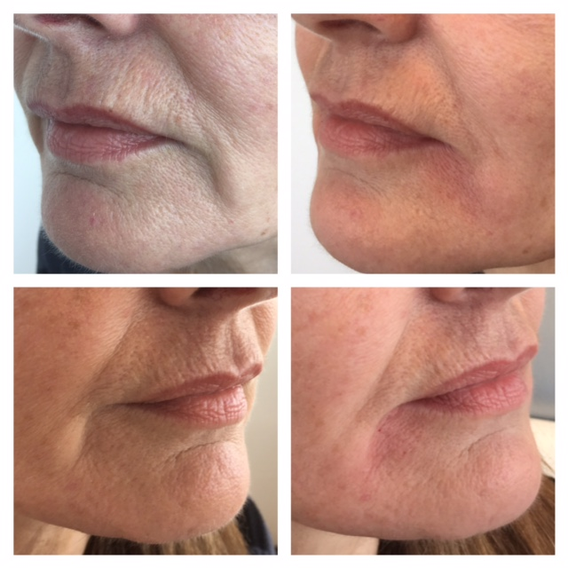 Fillers (Juvederm) oral corners.