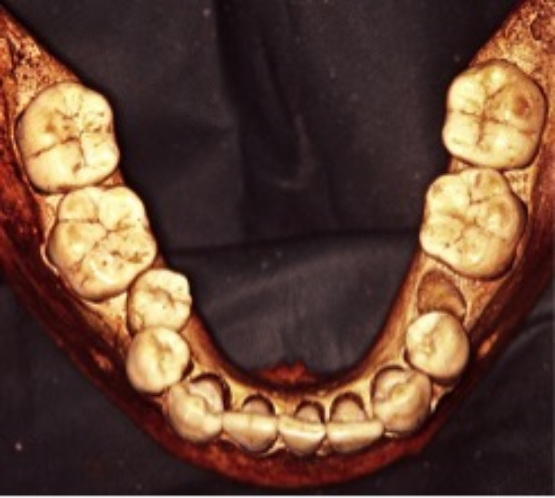 Kagamil Mandible with medial shift of #19 and 30