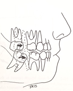 Mesial shift of 1st Permanent Molar - Courtesy Dr. T. K. Barber