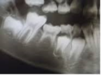 Loss of Occlusal Positioning suggesting ankylosis of the first and second primary molar and congenitally missing second bicuspid.