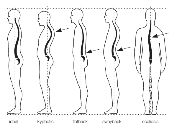 Types of Faulty Posture