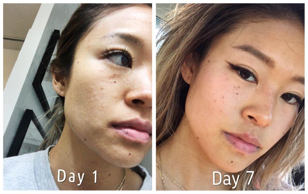 Coconut Oil As A Facial Moisturizer