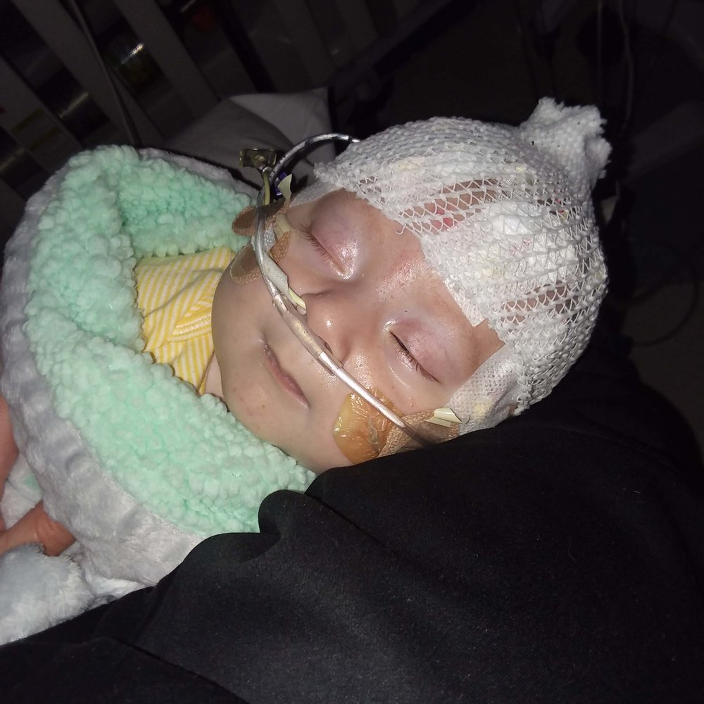CDH Support, CDH Awareness, Congenital Diaphragmatic Hernia, Fore Hadley
