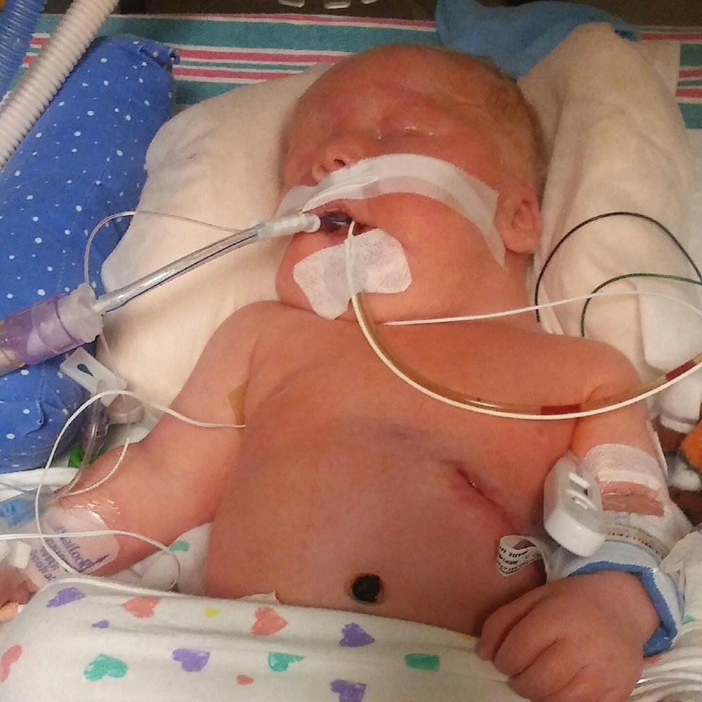 CDH Awareness, CDH Support, Congenital Diaphragmatic Hernia, CDH, Fore Hadley