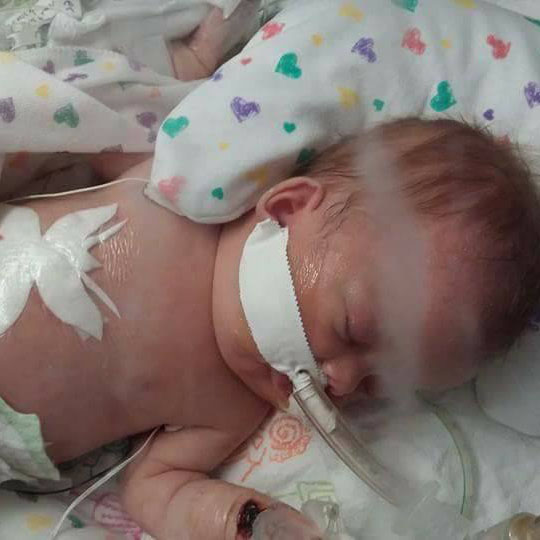 CDH Awareness, CDH Support, Congenital Diaphragmatic Hernia