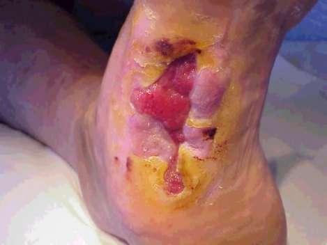 ulcer3.jpg