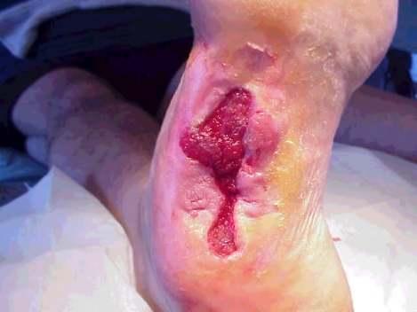 ulcer4.jpg