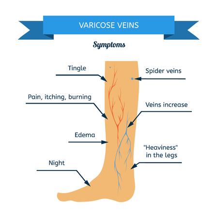 69777789_S-spider_veins_vericose_poor_circulation_clots_leg_foot.jpg