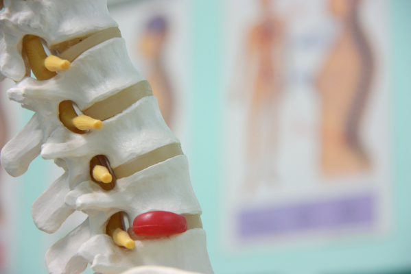 Back pain myths: bulging discs