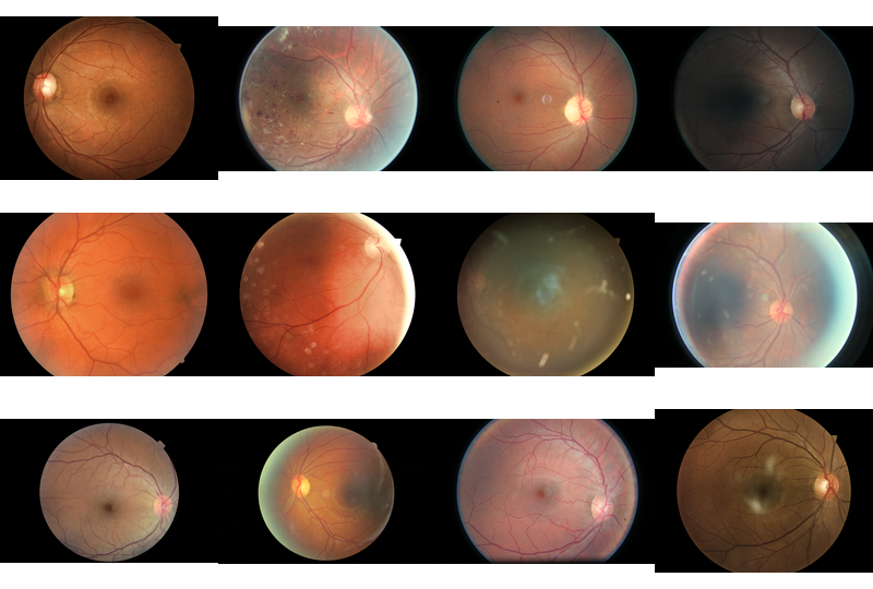 Some samples of the images from the kaggle dataset.