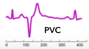 Figure 4: Template PVC wave used by the DTW algorithm.