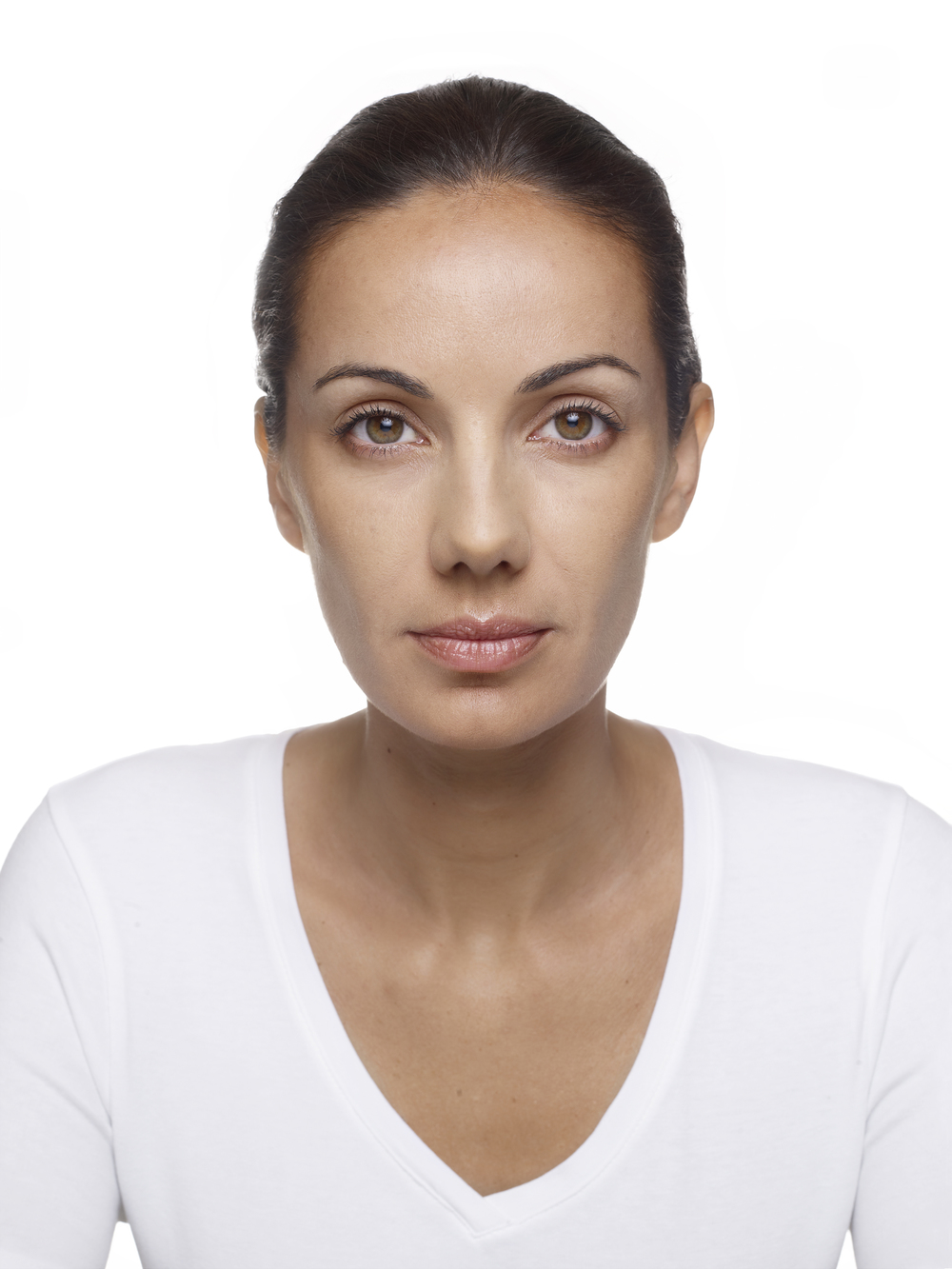 Full-face-01-after-Dr-Imhof-Germany.jpg