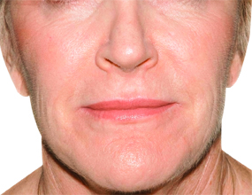 Nasolabial Folds & Marionette Lines after.jpg