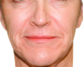 Nasolabial Folds & Marionette Lines before.jpg