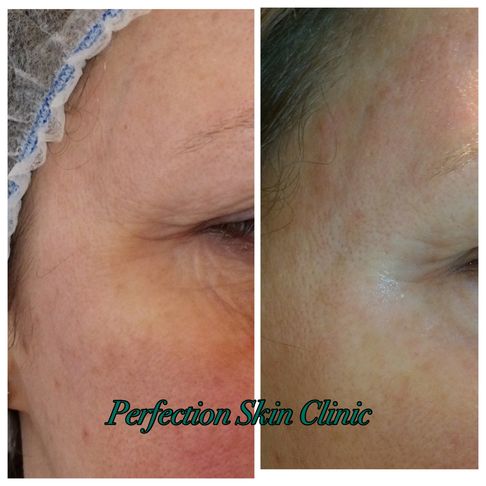 Before & After MesoVytal treatment by Sally in Perfection Skin Clinic in Norwich