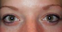 eyeline after 1.JPG