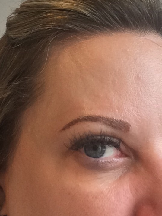 Right brow is peeling more than the left one