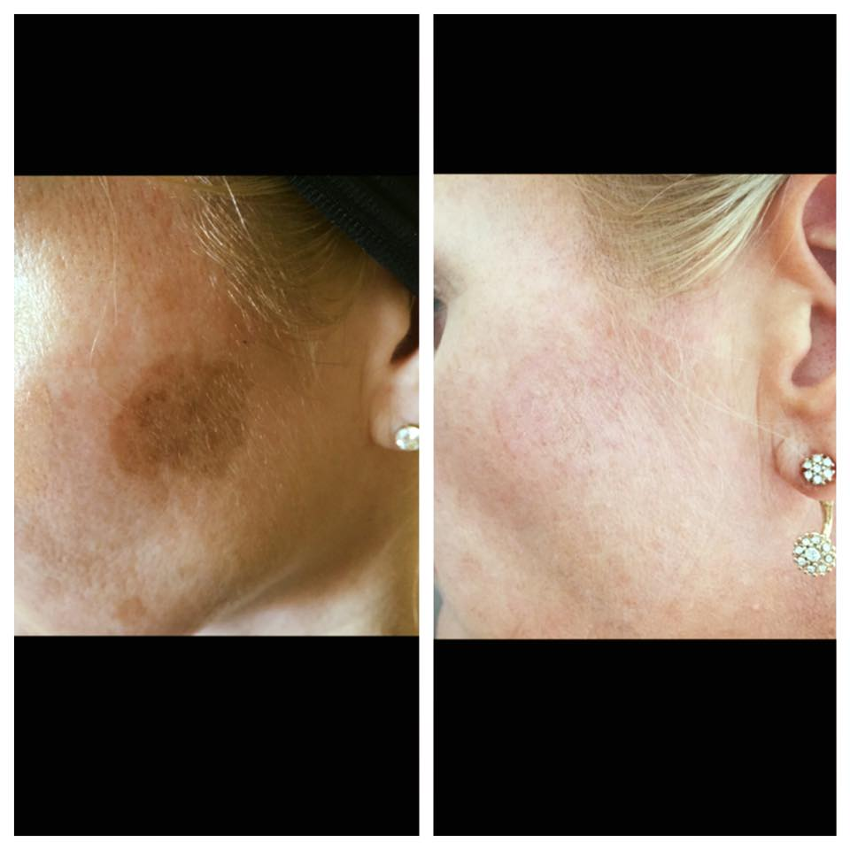 Removal of Age Spots