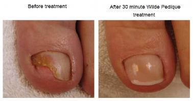 Today Nail Diseases Can Be Treated Permanently And Successfully With Cosmetic Treatments This Has Become Possible By The Development Of Modern