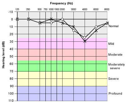 Diagram profiling the typical frequency dropoffs of someone experiencing noise induced hearing loss