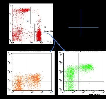 图 5.自体血免疫细胞教育疗法纠正 1 型糖尿病患者自身免疫记忆。所有受 试者接受两次治疗。 3 个月后,所有受试者接受第二次治疗。治疗后随访分别在 2,8,12,26,40 和 56 周。采用聚蔗糖 - 泛影葡胺(=1.077)从 病人的外周血中分离淋巴细胞,然后进行流式细胞仪分析。同型匹配的 IgG 作为对照。(A)外周血免疫细胞定量分析。(B)治疗后随访 1 年观察 CD4+TEM 和 CD8+TEM 的变化。(C)治疗后随访 1 年观察 CD4+TCM 和 CD8+TCM 的变 化。(D)采用 CD45RA 和 CCR7 作为分子标志,把 CD4+ T 细胞划分为 naïve T、TCM 和 TEM。Gated CD4+ T 细胞治疗26周后 CD45RA and CCR7 的变化。