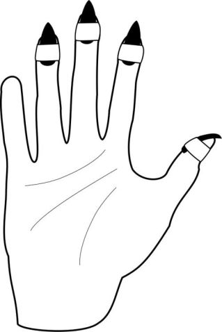 Drawing of right hand, palm upwards, with taped picks. Created by author, inspired by  Lee/Gresham 2002 Volume One