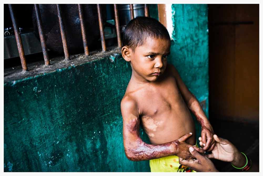 Caste violence, Indian Dalits, Being Untouchable. Photo: © Marcus Perkins
