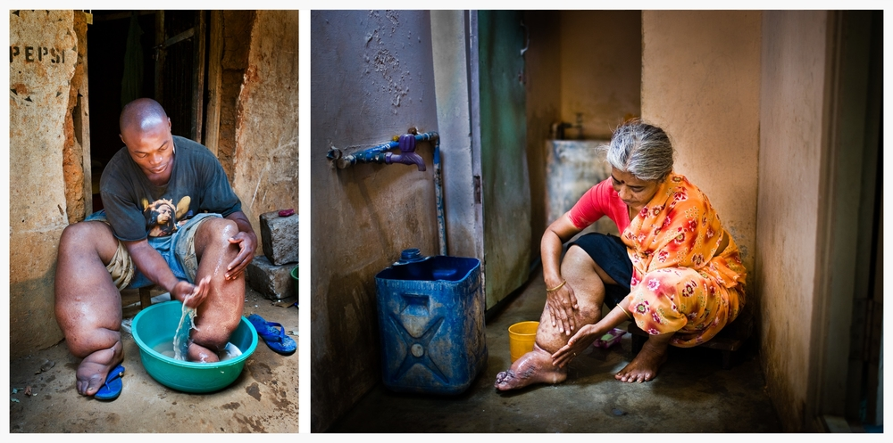 Lymphatic Filariasis. Photo: Marcus Perkins for GSK