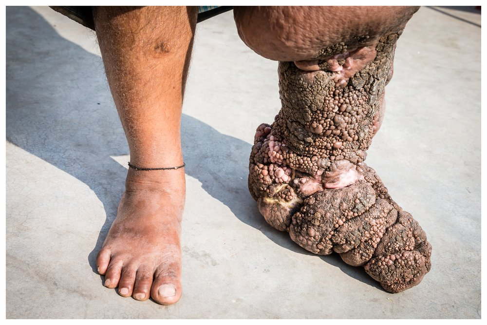 Stage 4 lymphedema caused by lymphatic filariasis. The skin condition has rapidly deteriorated following an ill advised procedure by a poorly qualified plastic surgeon. Photo: © Marcus Perkins for GSK.