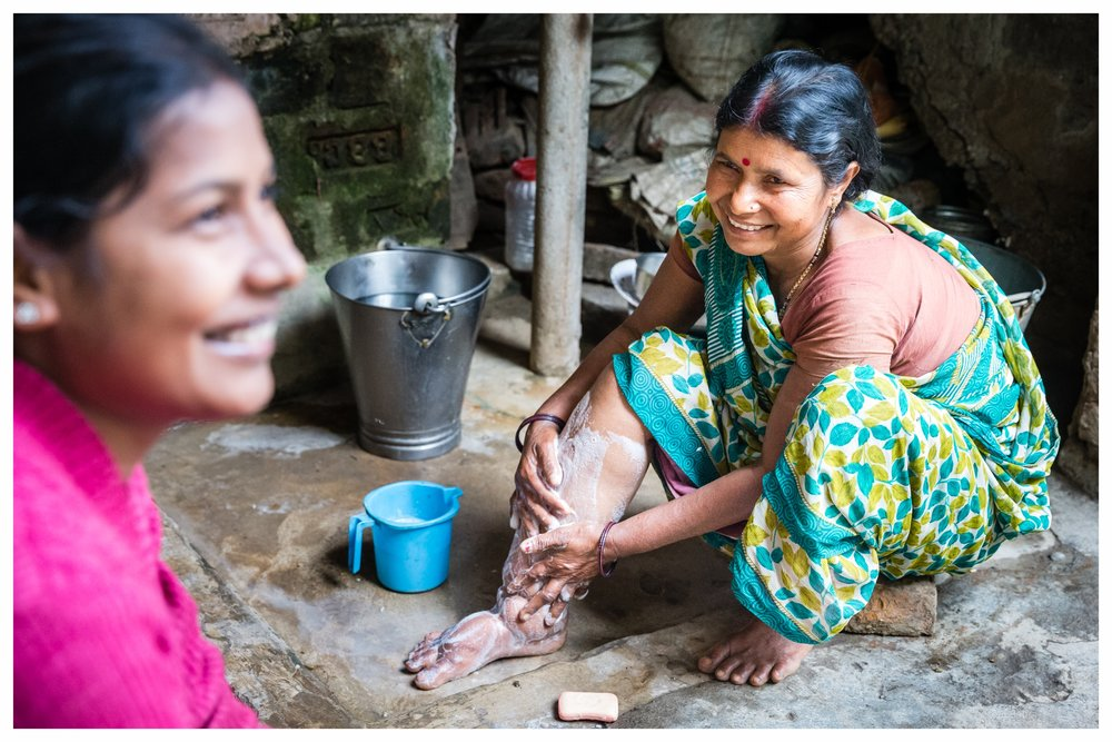 Amli Devi shows us how she washes her leg which is affected by lymphatic filariasis. Photo: Marcus Perkins for GSK