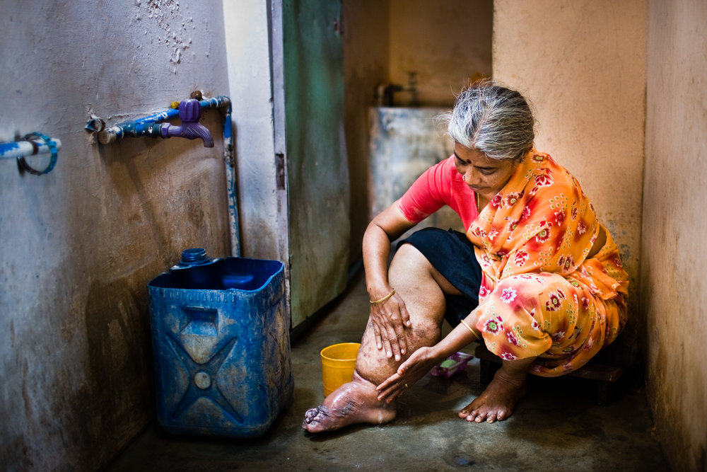 Lymphatic filariasis - Lymphatic filariasis, often known as elephantiasis, is a devastating parasitic worm infection spread by mosquitoes that affects 120 million people.