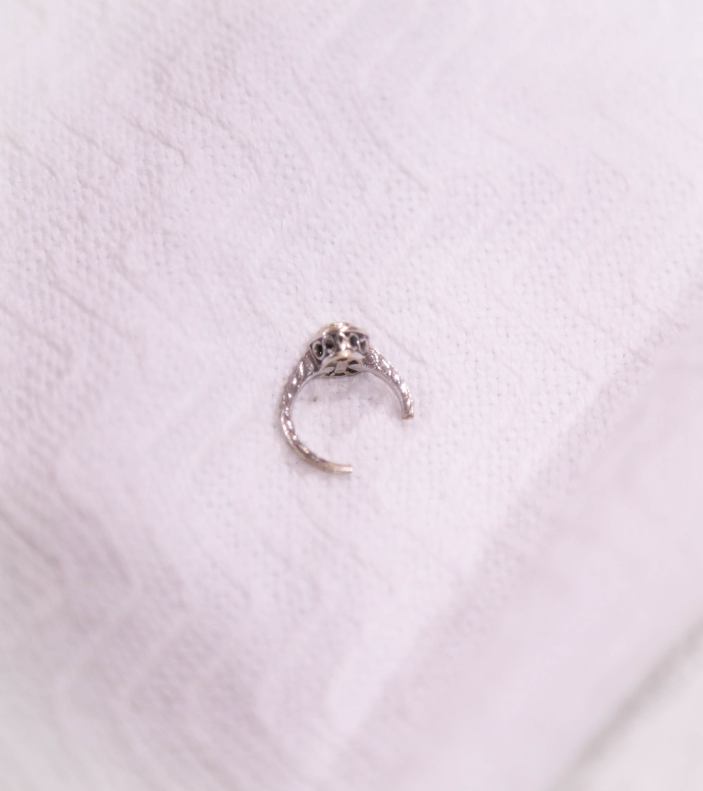 My wedding ring after they cut it off my swollen finger